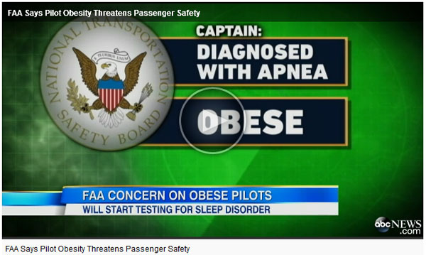 FAA says that obesity can cause obstructive sleep apnea